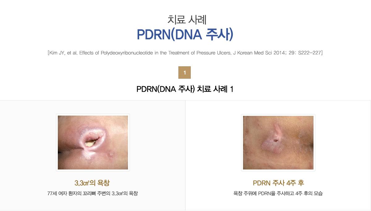 치료 사례PDRN(DNA 주사):1)PDRN(DNA 주사) 치료 사례 1